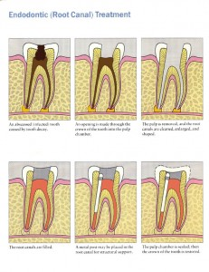 endosequence 231x300 Complications of Root Canal Treatment