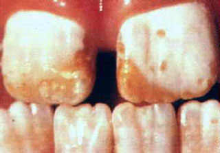 Intrinsic staining of teeth