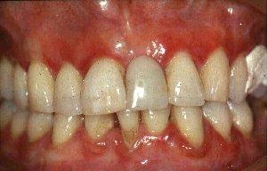 Swollen gums in gingivitis