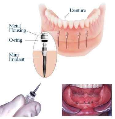 Mini dental implants.Image taken from http://www.intelligentdental.com/wp-content/uploads/2009/08/miniimp03.jpg