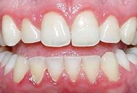 Gum disease    Picture courtesy of www.omgperio.ca/media/graphic/news_gingivitis.jpg