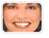 Enhance your smile with Teeth whitening