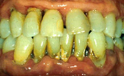 Chronic periodontitis.Image taken from