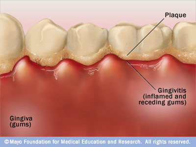 de7 gingivitis All about gum disease Part 1