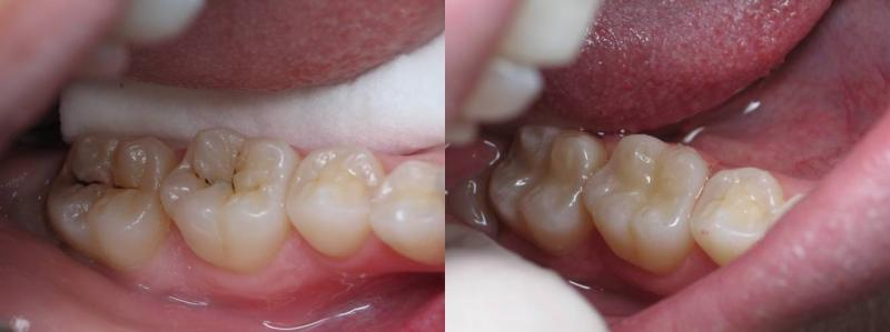 Dental Bonding before and after pictures shown below: