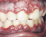 red and bleeding gum.Image is taken from http://www.softdental.com/diseases/Primary_Herpes_Simplex_HSV_Infection.html