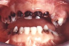 tooth decay in children @ thebuczkowskiblog.blogspot.com