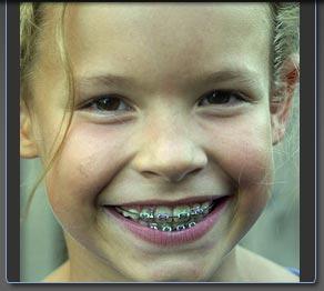 orthodontic treatment for children @ aligndoc.com