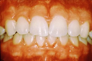 19619 300x199 Causes of Sore Gums