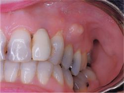 Periodontal abscess © The Free Dictionary