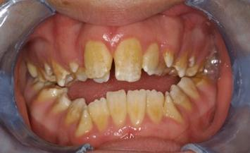 Yellow teeth stains from inherited conditon, amelogenesis imperfecta