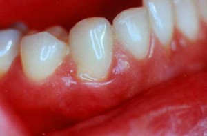 bleedinggums 300x197 Causes of Gum Swellings and Lumps Part1