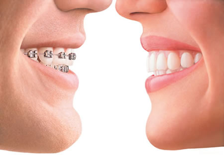 invisalign Tooth straightening with invisible braces