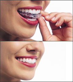 invisalignRemovable Tooth straightening with invisible braces
