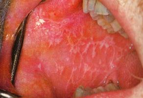 Oral lichen planus Symptoms and causes - Mayo Clinic
