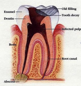tooth infections 282x300 Apical Periodontitis: Symptoms and Treatment