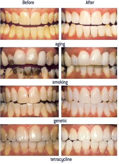 Tooth whitening results that can be achieved with Zoom teeth whitening system