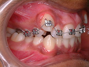 Orthodontic treatment of crowded teeth; the ca...