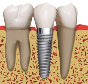 dental implant 300x285 How to Replace Missing Teeth