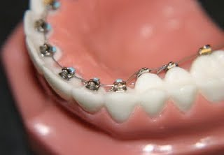 lingual braces 0041 3 Types of Orthodontic Braces You Must Know About