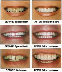 5 3 hero porcelain veneers 261x300 What Dental Corrective Surgery Could Do For You Part 2