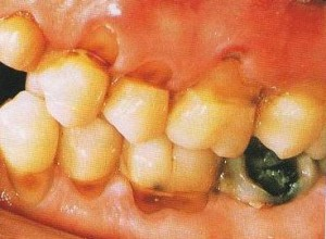 Toothbrush abrasion along cervival margins of teeth 300x220 How Aging Affects Our Mouth