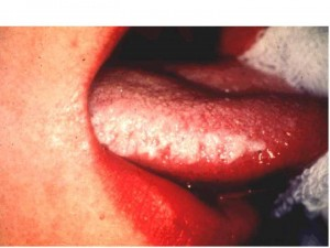 White Hairy Leukoplakia