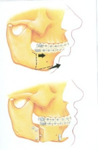 Jaw surgery to correct retruded lower jaw @ pineypointoms.com