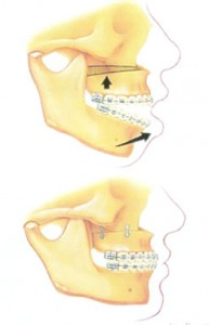 Jaw surgery to correct open bite @ pineypointoms.com