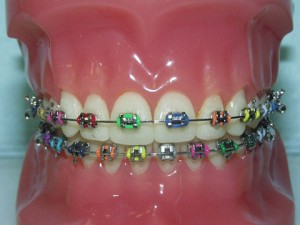 metal braces 300x225 What Dental Corrective Surgery Could Do For You Part 1