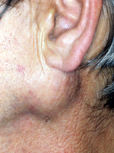 Swelling of parotid gland © W P Smith