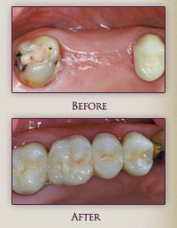 Dental bridge @ franklindentist.com