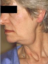 Swelling of the submandibular gland © W P Smith