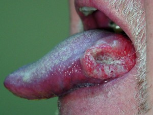 Oral cancer lesion at the side of the tounge