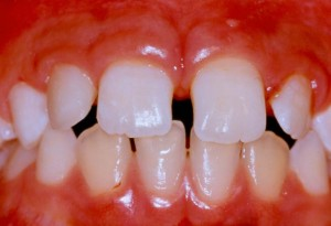 The size of the small tooth has been increased with composite bonding material