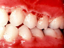 Acute necrotizing gingivitis © Too Smile Dentals