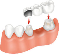 bridge dental1 Permanent Dentures Cost in the US and Malaysia