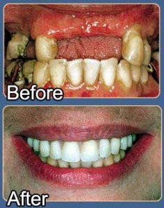 Permanent dentures © Impact Lab