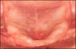 Atrophy of maxillary alveolar ridge