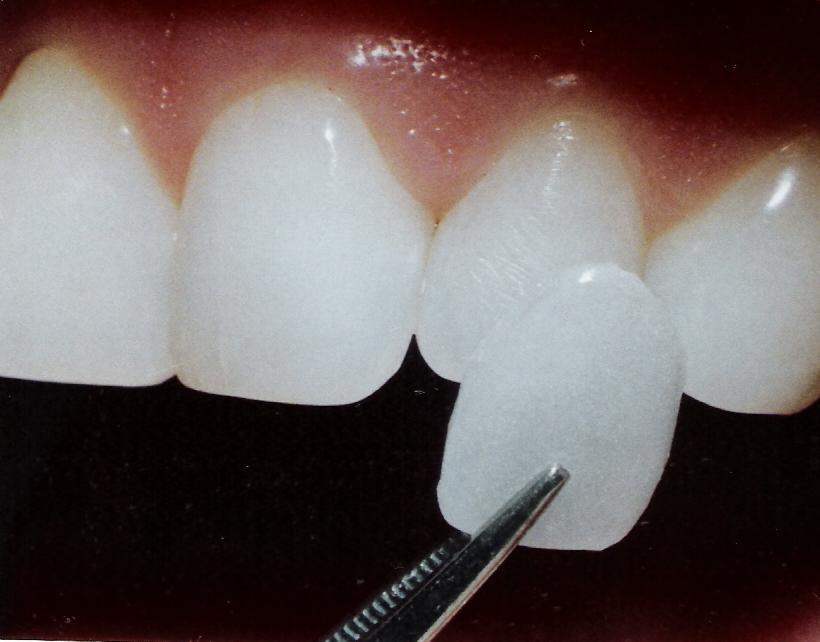 How Dental Porcelain Veneers Could Make You Look Good Intelligent Dental