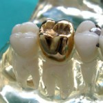 gold crown, dental crown, crown