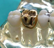 gold crown Cost and Care of Dental Crowns
