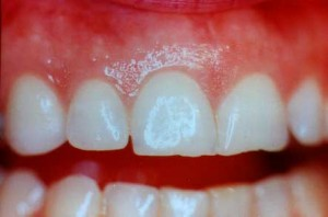 image24 300x198 Causes of Red, White or Pigmented Gums