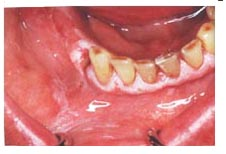 leukoplakia Causes of Red, White or Pigmented Gums