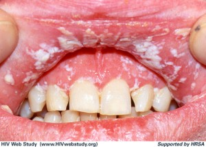 Pseudomembranous Candidiasis (Thrush) on Lips and Gums © University of Washington