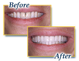 porcelain crowns, all porcelain crowns, dental crowns