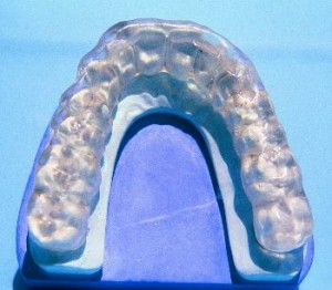 Mouth Guard for teeth grinding