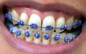 A female mouth with braces.