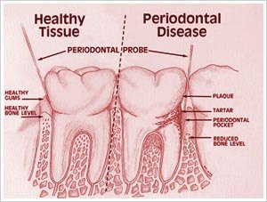 Periodontitis 1991 Chronic Adult Periodontitis: Cause and Symptoms