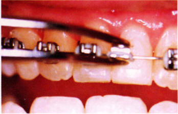 Detached bracket from tooth